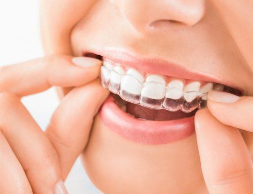 Invisalign: Por qué decidirte por la ortodoncia invisible
