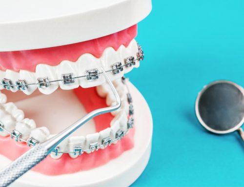 Por qué los brackets metálicos de baja fricción pueden ser tu mejor aliado