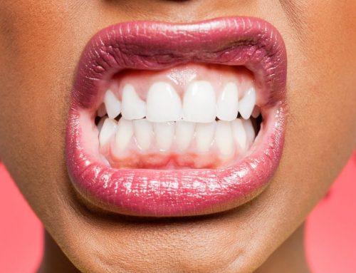 Cuáles son las causas, síntomas y tratamientos de la enfermedad periodontal