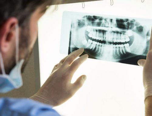 Por qué es tan importante ponerte un implante dental si te falta un diente