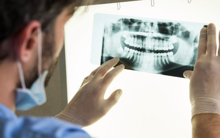 consecuencias falta de dientes