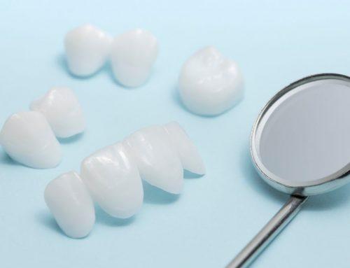 Diferencias entre las carillas y las fundas o coronas dentales