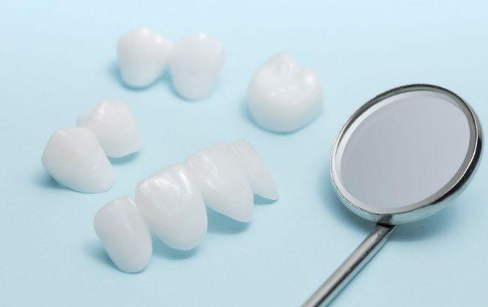 carillas o coronas fundas dentales