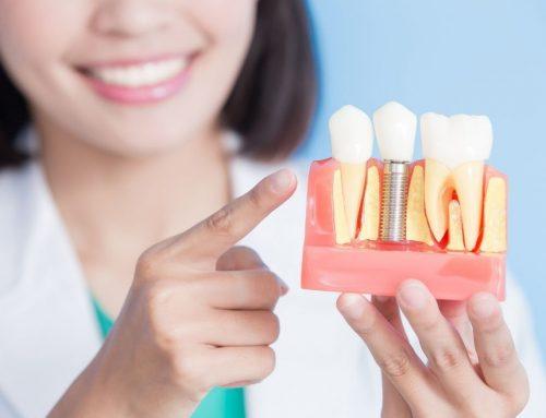 ¿Cuál es el precio de los implantes dentales?