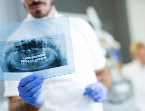 Seis preguntas frecuentes sobre la implantología dental de carga inmediata